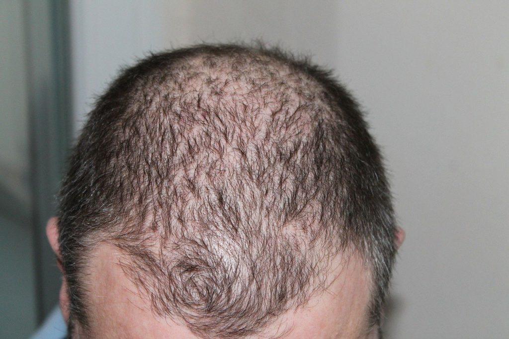 Dream Interpretation of Hair Loss